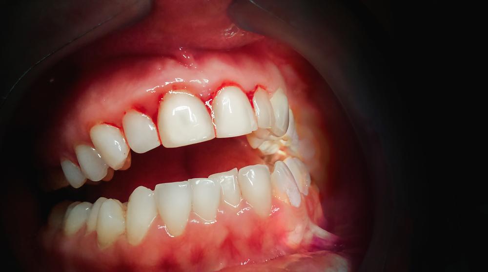 enfermedades de las encías