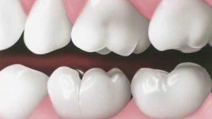 fisura dental