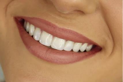 Clínica dental en Pamplona - blanqueamiento dental - estética dental
