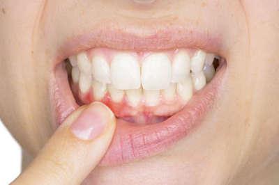Clínica dental en Pamplona - Tratamientos periodontales