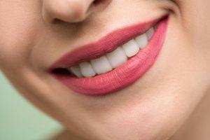 Blanquamiento dental Pamplona