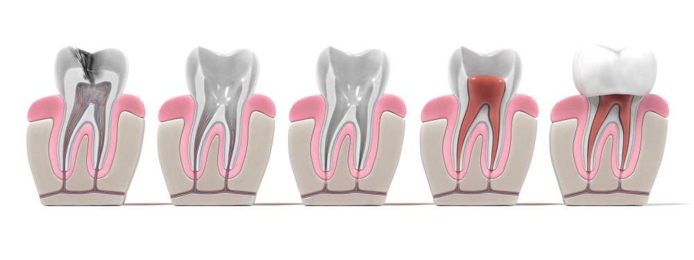 Procedimiento endodoncia en Clínica dental Bayona
